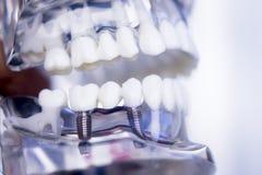 Dentystów zębów stomatologiczny wszczep Fotografia Royalty Free
