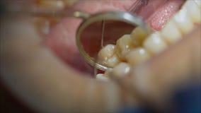 Dentysta egzamininuje pacjenta z?by w dentysty egzaminie z?by w stomatologicznej klinice zdjęcia royalty free