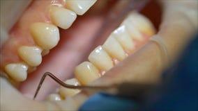 Dentysta egzamininuje pacjenta z?by w dentysty egzaminie z?by w stomatologicznej klinice obraz stock