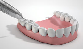 Dentysta sondy zęby I haczyk Obraz Royalty Free