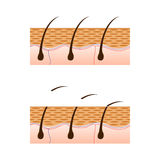 Depilation and skin with hair sectional view. Schematic representation of skin and depilation isolated on white background. Vector illustration. EPS 10 stock illustration