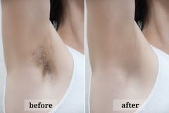 Depilation zone underarms. Before and after stock image
