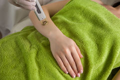 Depilazione del laser sul braccio del ` s della ragazza Fotografie Stock