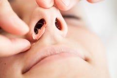 Depilazione nasale con la cera calda Fotografia Stock