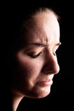 Depressed female acne sufferer Stock Images