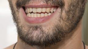 Der bärtige Mann lächelt und zeigt schlechte Zähne lizenzfreie stockfotos