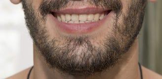 Der bärtige Mann lächelt und zeigt schlechte Zähne stockbilder