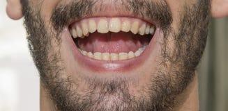 Der bärtige Mann lächelt und zeigt schlechte Zähne stockfoto