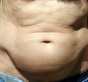 Der dicke Bauch eines Mannes Lizenzfreies Stockbild