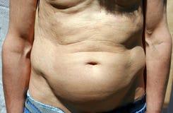 Der dicke Bauch eines Mannes Stockfotos