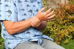 Der Mann, der Eisbeutel auf Handgelenk hält, las die Stelle, die Standort der Schmerz anzeigt arthritis Senior in den Schmerz stockfotografie