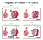 Der Prozess der Tuberkulosebildung Infographics Vektorillustration auf lokalisiertem Hintergrund Stockfotos