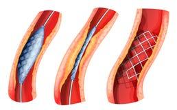 Der Stent, der benutzt wurde, um sich zu öffnen, blockierte Arterie stock abbildung