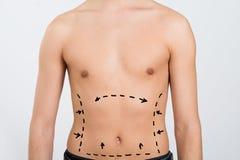 Der Unterleib des Mannes mit Korrektur-Linien stockbild