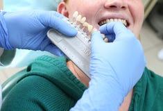 Der Zahnarzt wählt die Farbe der Zähne für prothetisches vor Stockfotos