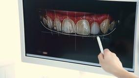 Der Zahnarzt zeigt dem Patienten einen Schnappschuß seiner Zähne stock video