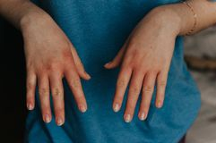 Derma problem on hands. Red eczema. Derma problem on hands. Scratching hands stock photos
