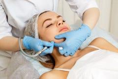 Dermabrasion face. Hardware cosmetology. Dermabrasion cheekbones girl. Instrumental cosmetology. Spa. Facial Rejuvenation. Mechanical peeling skin Stock Photography