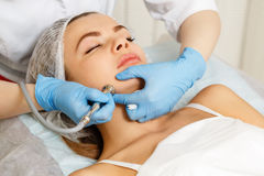 Dermabrasion face. Hardware cosmetology. royalty free stock photos