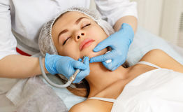 Dermabrasion face. Hardware cosmetology. Stock Photography