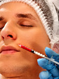 Dermal fillers of man in spa salon with beautician. Royalty Free Stock Image