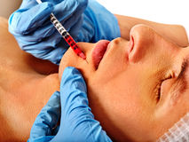 Dermal fillers of man in spa salon with beautician. Royalty Free Stock Photo