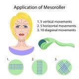 Dermaroller dla mesotherapy pojedynczy białe tło ilustracja wektor