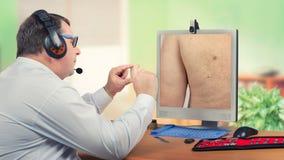 Dermatólogo de la telemedicina que mira el quiste sebáceo en monitor Foto de archivo libre de regalías