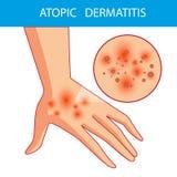 Dermatis atópicos A pessoa risca o braço em que está a dermatite atópica itching ilustração royalty free