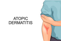 Dermatite atopica allergia illustrazione vettoriale