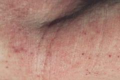 Dermatite da pele Imagem de Stock Royalty Free
