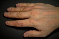 Dermatite della mano Eczema della mano Fotografie Stock Libere da Diritti