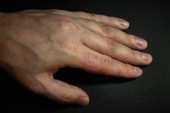 Dermatite della mano Eczema della mano Immagini Stock Libere da Diritti