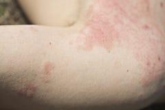 Dermatite della pelle Immagini Stock