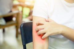 Dermatithudallergi: kvinnor räcker att klia skrapa röd hud arkivfoto