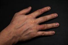 Dermatitis de la mano Eczema de la mano Imagen de archivo