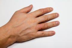 Dermatitis de la mano Eczema de la mano Foto de archivo libre de regalías
