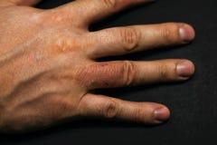 Dermatitis de la mano Eczema de la mano Fotos de archivo