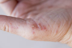 Dermatitis in hands. Hands of an adult woman with a problem of dermatitis Stock Images