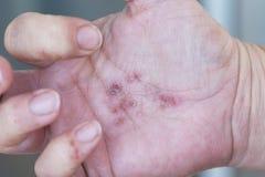 Dermatitis in hands Stock Image