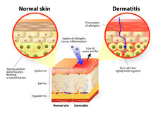 Dermatitis lub egzema Obrazy Royalty Free
