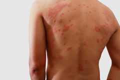 Dermatitis  of rash ,Allergy rash. Man with dermatitis problem of rash ,Allergy rash Royalty Free Stock Photography