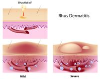 Dermatitis Rhus Stockbild