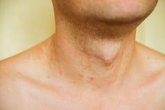Dermatitis skin Stock Images
