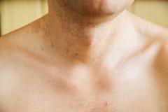 Dermatitis skin Stock Photography
