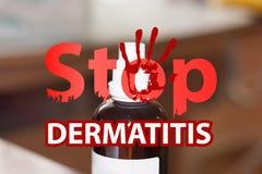 dermatitis stop. medicine for Royalty Free Stock Photo