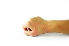 Dermatitisprobleem van uitbarsting, Allergieuitbarsting en gezondheidsprobleem Stock Foto
