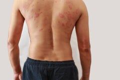 Dermatitproblem av överilat, överilad allergi Arkivfoton
