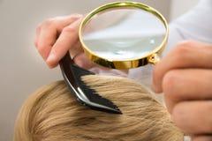 Dermatologe, der blondes Haar durch Lupe schaut Lizenzfreie Stockfotos