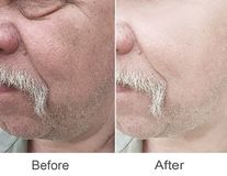 Dermatologi cosmetology, korrigering, plast- arkivbild